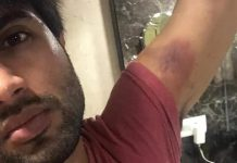 vijay deverakonda escaped major accident